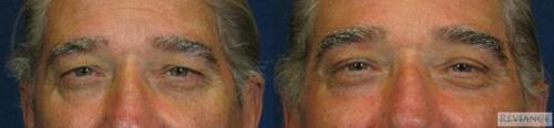 Laser Eyelid Lift